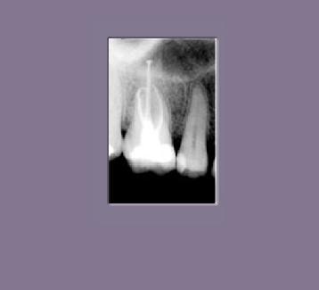 endodoncia molar