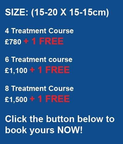 Laser Tattoo Removal Pricing