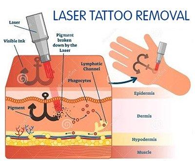 Laser Tattoo Removal Diagram