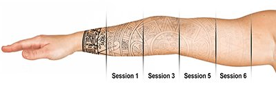 Laser tattoo removal fading diagram London Tattoo Removal