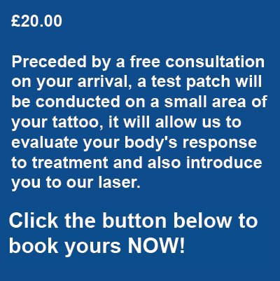 Laser Tattoo Removal Test Patch Pricing