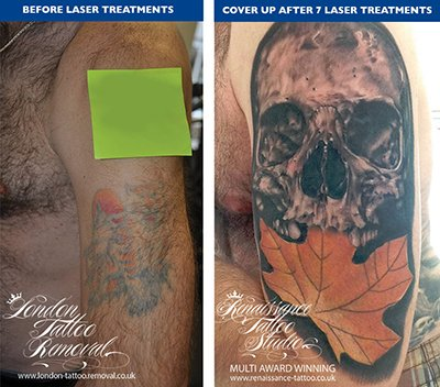 Laser Tattoo Removal cover up Example at London Tattoo Removal