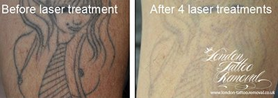 Laser Tattoo Removal London and Hertfordshire Example